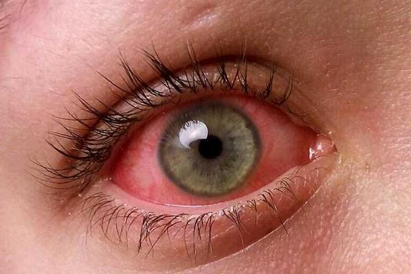 Воспалившиеся глаза